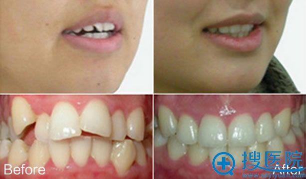汕头名流牙齿隐形矫正前后对比图