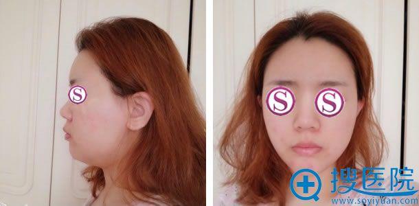 在北京海医悦美做面部吸脂前照片