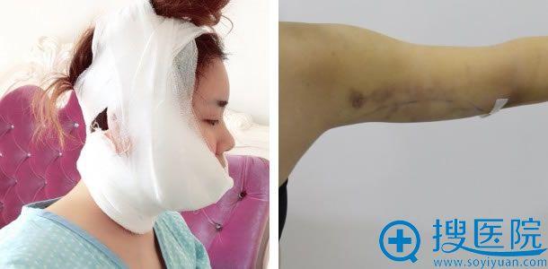 做完面部和手臂吸脂手术第二天