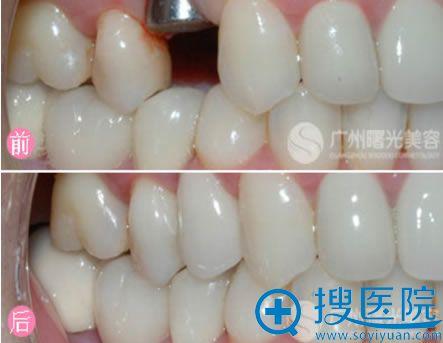 广州曙光整形医院种植牙案例
