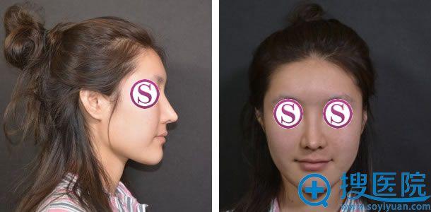 在北京柏丽做鼻修复手术前照片