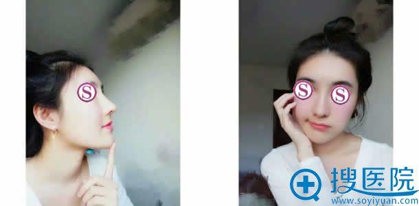 北京柏丽隆鼻失败修复手术第10天