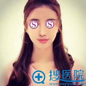 做鼻综合修复鼻失败手术1个月