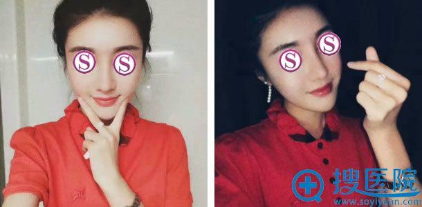北京柏丽李劲良做鼻修复手术2个月效果