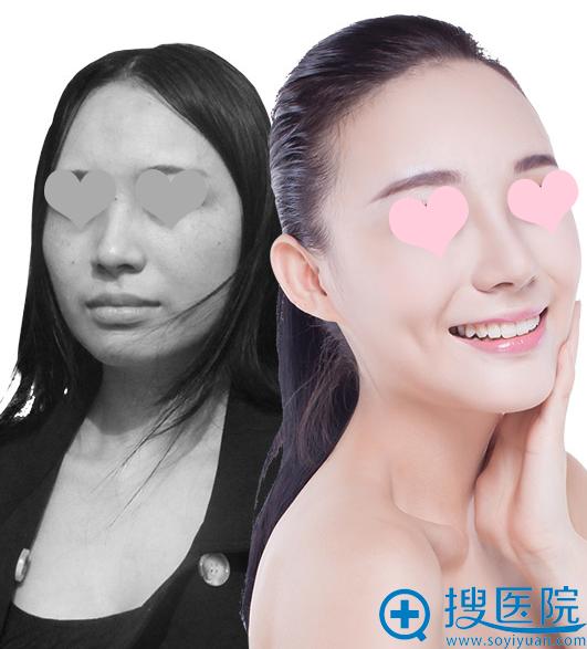 上海美莱真人整形前后对比