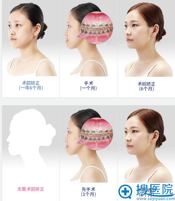 韩国ID整形医院突嘴双鄂手术6个月恢复过程