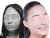 上海美莱2017暑期学生整形优惠价格表 杜园园埋线双眼皮688元