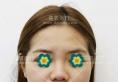 上海喜美王会勇隆鼻案例 花费41800元短塌鼻变直翘鼻侧颜美翻了