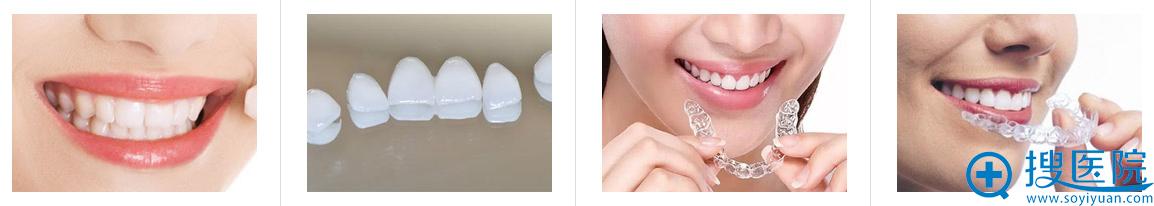 上海美莱牙齿矫正产品