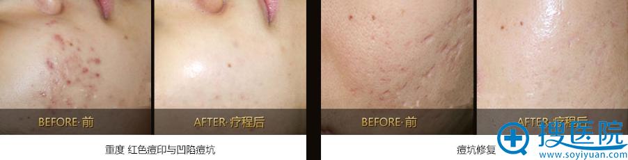 上海美莱祛痘真人案例对比图