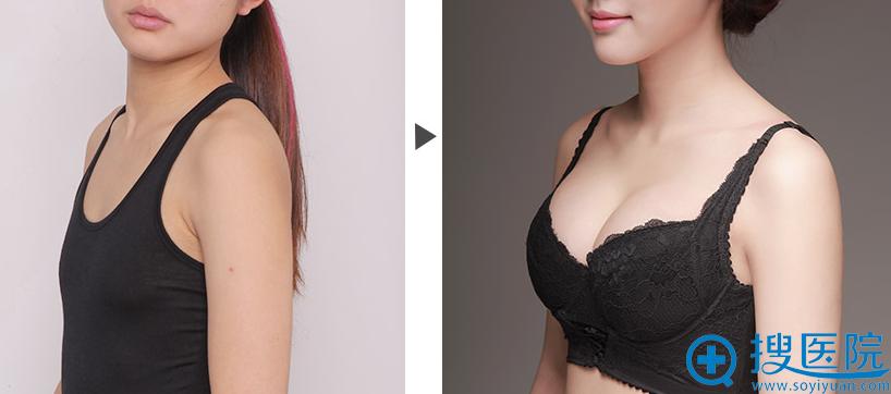 上海美莱假体隆胸前后对比案例