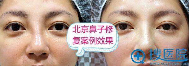 北京整形医院鼻子修复案例图