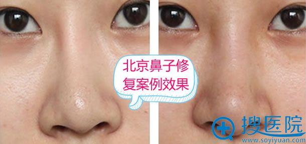 北京鼻子修复前后效果参考案例