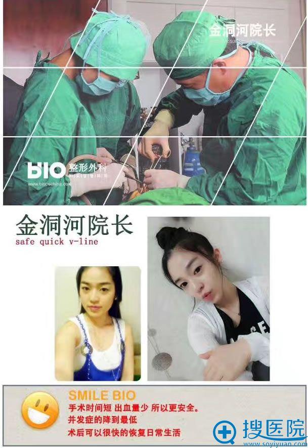 金洞河在韩国BIO实施整形手术