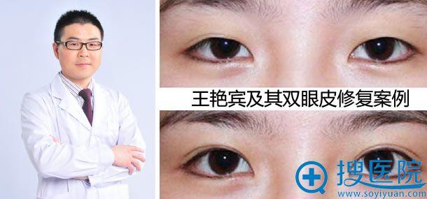 王艳宾_北京欧尔美整形医院