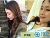韩国id整容医院隆鼻失败修复案例 30岁上班族的鼻整形真实后记