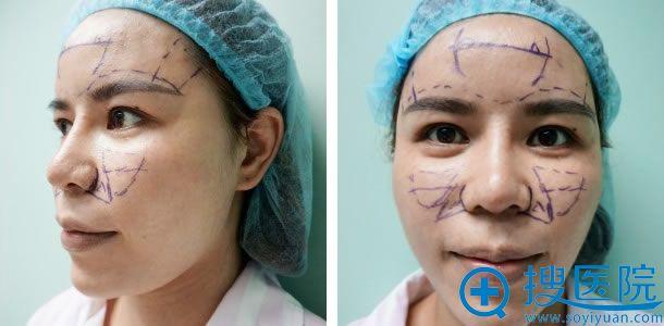北京俯大医疗美容自体脂肪填充方案图
