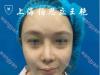 上海百达丽整形医院王艳隆鼻案例 自然挺翘就是这么简单