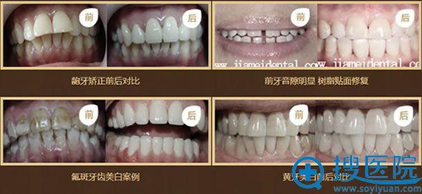 北京佳美口腔牙齿美容案例图