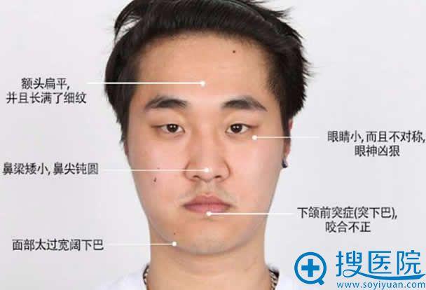 韩国faceline做改脸型手术前照片
