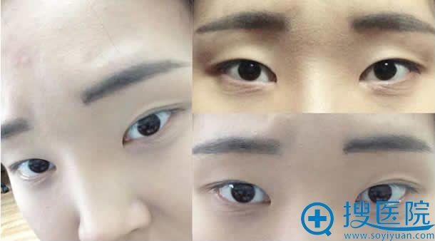割双眼皮手术前的照片