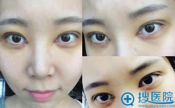韩国做切开双眼皮拆线的照片