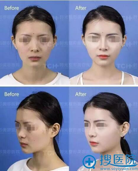 杭州时光自体脂肪+综合隆鼻前后对比照片