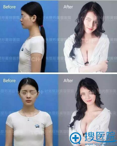杭州时光假体丰胸前后对比效果图