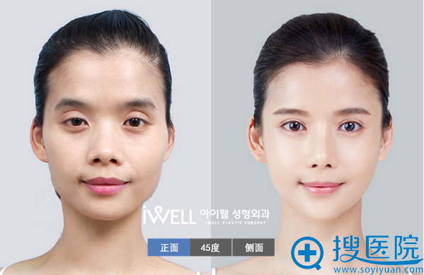 韩国爱我整形医院面部轮廓案例