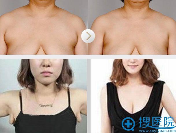上海九院李伟附乳祛除手术案例图