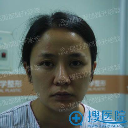 在广州时光做面部提升除皱术前照