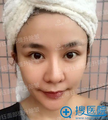 广州时光穆钰面部除皱术后半个月恢复效果