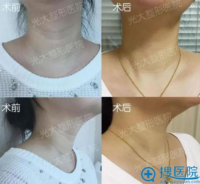 永康光大嗨体水光祛颈纹前后对比照片
