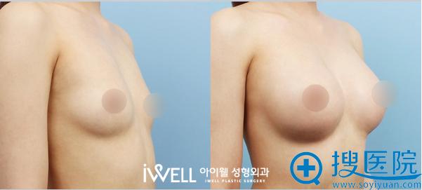 韩国爱我整形医院假体隆胸案例