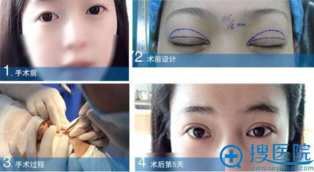 大连沙医生双眼皮手术过程+恢复效果