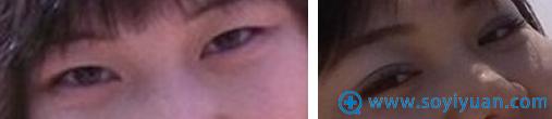 大连沙医生张建光割双眼皮案例