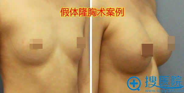 假体植入式隆胸前后效果图