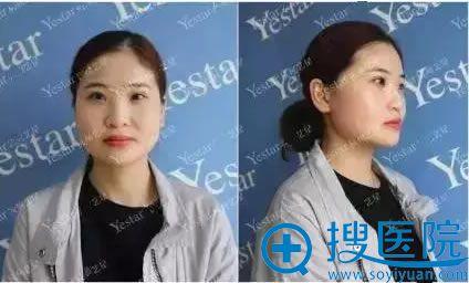 在武汉艺星整形医院隆鼻术前照