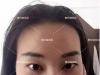 双眼皮+开眼角整形日记为你揭秘:惠州瑞芙臣刘丹虹整形怎么样?