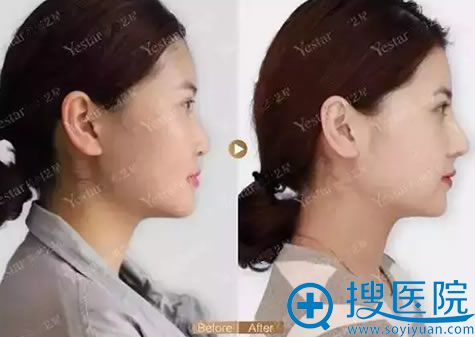 武汉艺星做假体隆鼻前后对比照