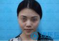 【真实图片】深圳龙岗丽港丽格谢俊:耳软隆鼻综合恢复全过程