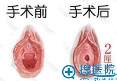 韩国好手艺妇科医院处女膜修复手术