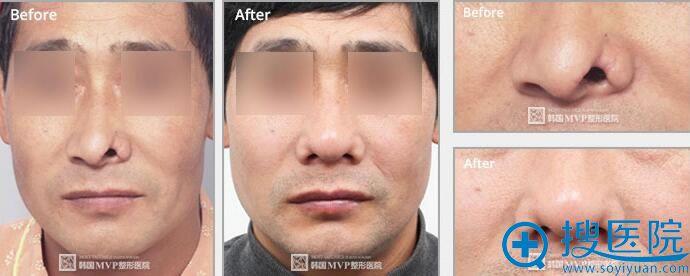 崔寓植鼻部再建手术案例