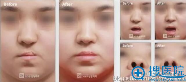 韩国MVP整形医院崔寓植唇腭裂修复案例