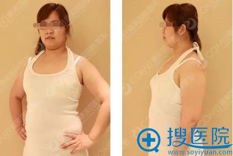 吸脂减肥术前照片