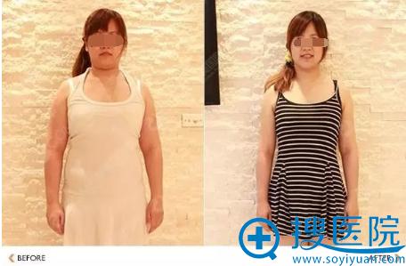 吸脂减肥正面前后对比照片
