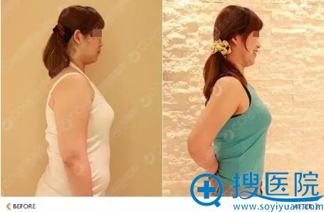 水动力吸脂减肥侧面对比照片