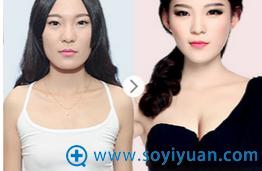 杭州华山连天美隆胸案例