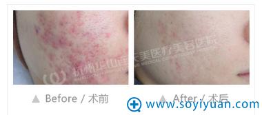 杭州华山连天美祛痘案例