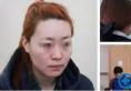 南宁东方整形医院刘刚线雕全脸提升案例 女神蜕变就这么简单
